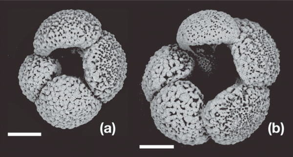 A diagram showing two forams, with a black background, and the forams in gray. The right foram is larger than the other, marked as